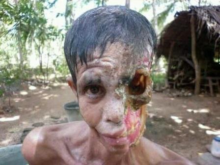 страшные фото болезни